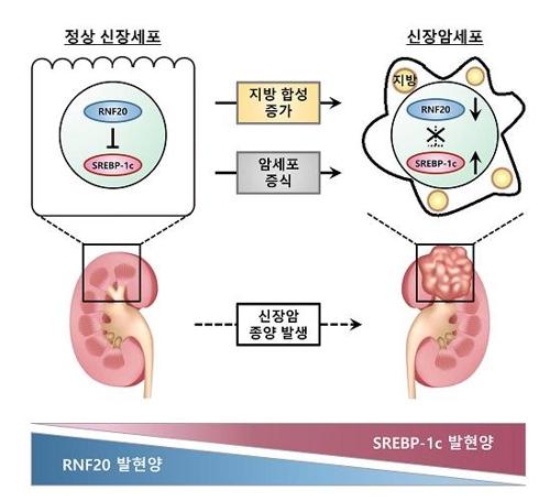 """신장암 발병 기제 규명…""""치료제 개발 기대"""""""