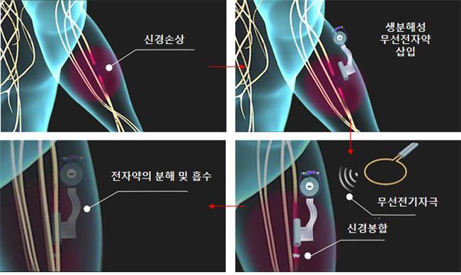 치료후 몸 속에서 '스르륵'…저절로 녹는 전자약 개발