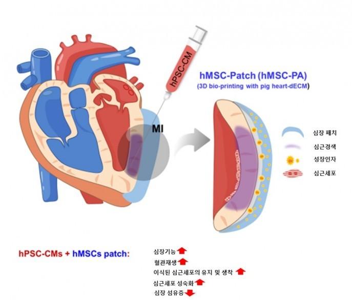 """""""복합 줄기세포로 심장 조직 재생""""···심근경색 치료 가능"""