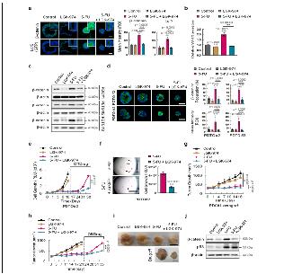 p53의 암 줄기세포 활성화 기전 규명