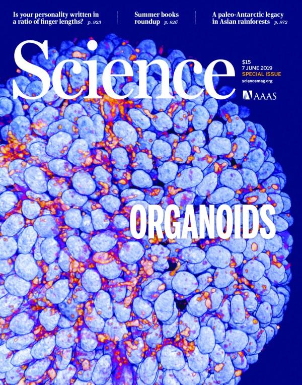 국제학술지 사이언스는 7일 인간의 기도를 흉내 낸 오가노이드를 3차원 공초점현미경으로 촬영한 사진을 표지로 담았다. 파란색이 DNA, 빨간색이 단백질이다....