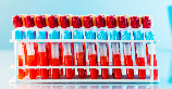 미국 뉴욕시의 병원들은 COVID-19에서 회복된 사람들의 혈액을 '가능한 해독제'로 사용할 준비를 갖추고 있다. 연구자들은 100년의 역사를 지닌 그 접근방법—...