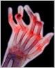 Rheumatoid arthritis Ű���� �м� (2009�� ~ 2013��)