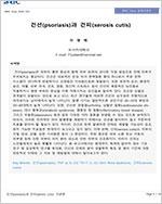 건선(psoriasis)과 건피(xerosis cutis)