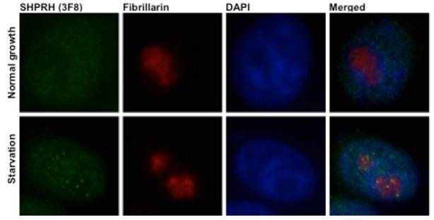정상-영양분 부족 상태의 세포내 SHPRH 단백질 분포 비교