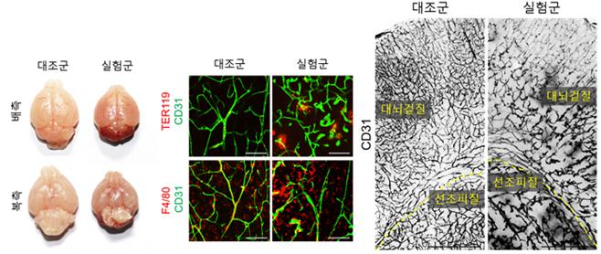 YAP/TAZ 전사인자 발현 억제 시 산발적인 뇌출혈과 뇌의 이상혈관