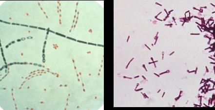 (왼쪽)바실러스 – 푸른 색-분열하는 세포, 붉은색-내생포자