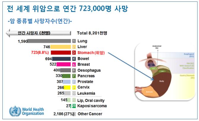 40대 전후에 발생하는 조기발병위암 원인 규명