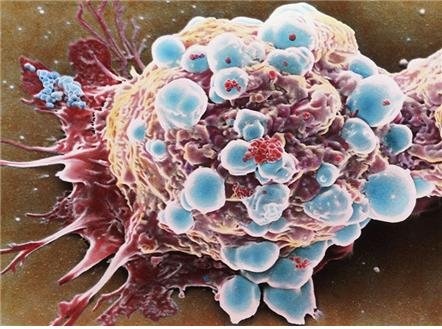 [바이오토픽] 조혈모세포이식을 통한 다발경화증 치료, 일부 약물보다 효과적