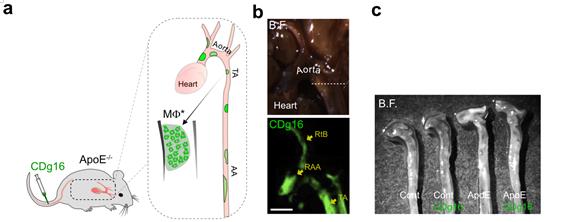 동맥경화 진단을 위한 새로운 형광물질 발견