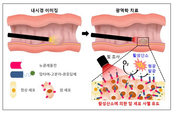 내시경의 암 진단‧치료 효과 높이는 소재 개발