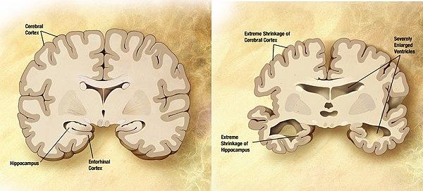 Alzheimer Disease Sequencing Project에서 생산한 대규모 데이터
