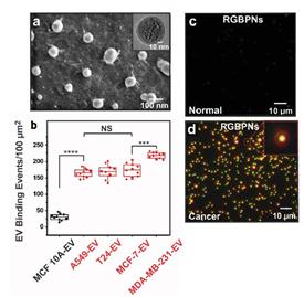 혈소판 칩 성능과 암환자 대조군 비교
