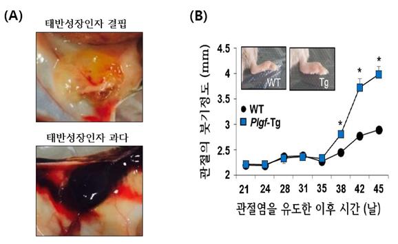류마티스 관절염 발생과정의 수수께끼 풀어