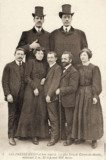 거인병을 앓고있는 휴고 형제와 그의 가족