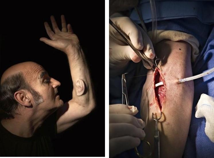 자신의 팔에 귀를 이식해 전 세계적인 주목을 끌었던 스텔락.