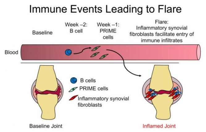 Immune events leading up to a rheumatoid arthritis flare