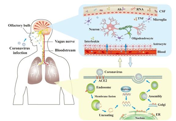 COVID-19는 어떻게 뇌(腦)를 손상시키나?