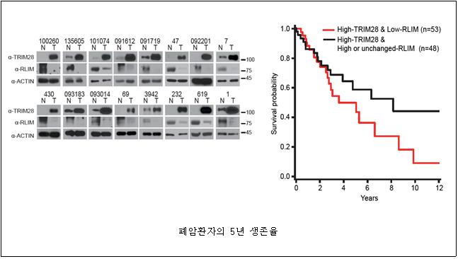 폐암환자에서 TRIM28, RLIM의 발현양상 및 5년 생존율