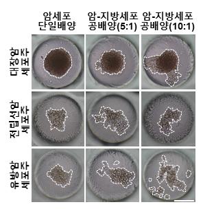 지방세포에 의한 암세포 이동현상