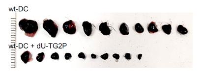 재조합 Transgelin-2의 수지상 세포 기능강화를 통한 항암능력 획득